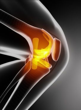 A knee revision procedure involves removing and replacing a partial or total knee implant with a new implant. It can be a complex surgical procedure that may require extensive preoperative planning, specialized implants and tools, and a skilled surgeon experienced in difficult surgical techniques.1 With over 580,000 knee replacements performed annually in the United States, 90% […]