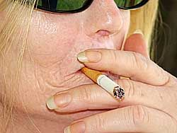 Want to stay young longer with supple skin? Then here is another reason to STOP SMOKING! Those who smoke are 10 times more likely to get wrinkles earlier than those who don't!