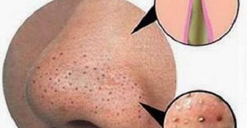 Nasenpflaster gegen Mitesser selber machen