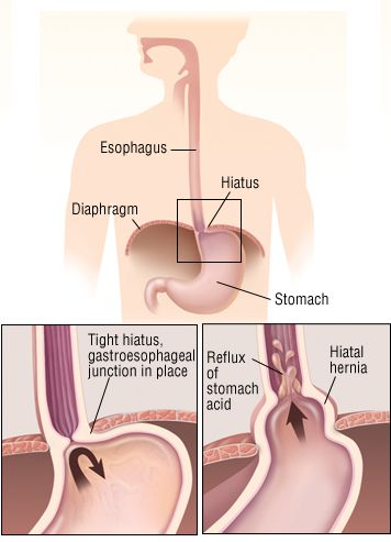 10 Best images about Hiatal Hernia Diet on Pinterest | Heartburn, Gluten free diet and No carb diets