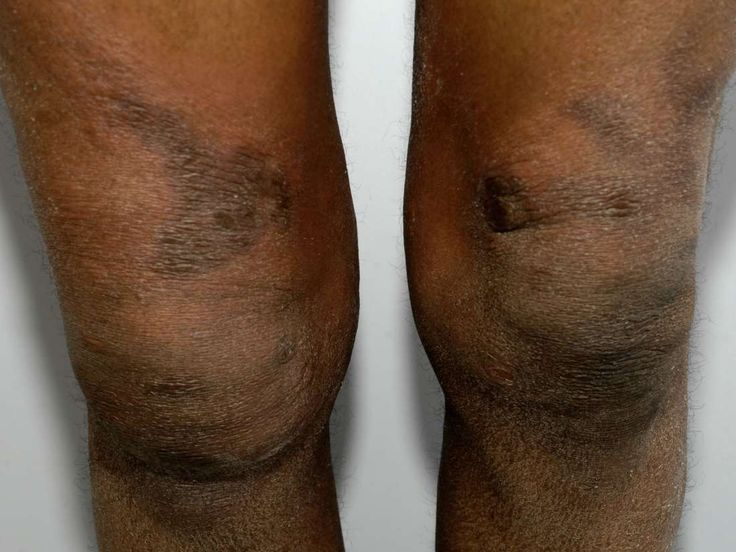 Even though this bruising is on the knee, it is helpful to ...