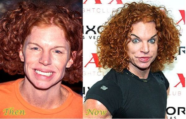 Carrot Top Then and Now