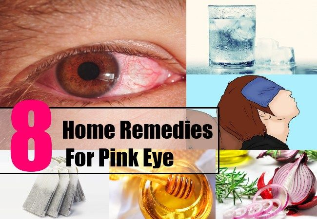 Best Home Remedies For Pink Eye