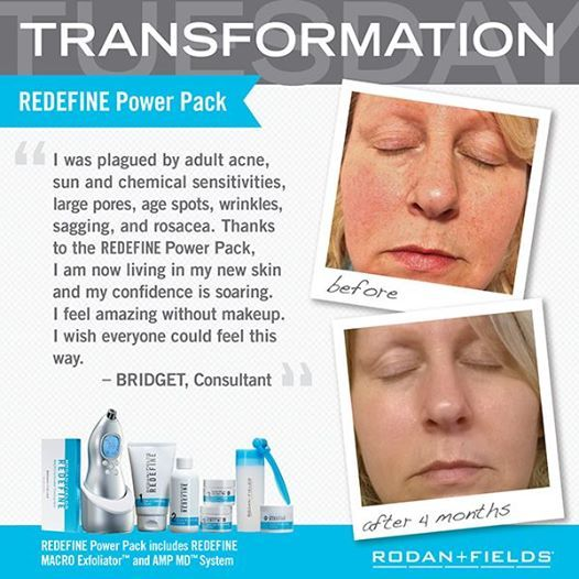 """On this #TransformationTuesday, inspire us with the tale of how you achieved the luminous look that lets your outer appearance reveal your inner radiance. Visit http://bit.ly/1fnJlvy for details and to learn how you can receive a complimentary regimen of your choice. """"PIN"""" this image and share how using your Rodan + Fields® regimen is giving you the freedom to """"Go Naked."""""""