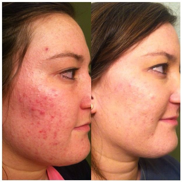 More great results using NeriumAD A picture is worth a thousand words. A New Year means A New You… order now… http://samanthagoss.nerium.com