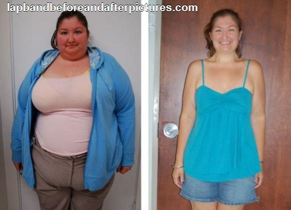20 best images about Bariatric Surgery: Before & After on ...