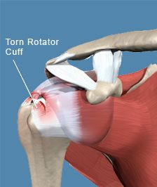 3 Things Everyone Should Know About the Shoulder...Rotator cuff or labrum tear? maybe you already have one....
