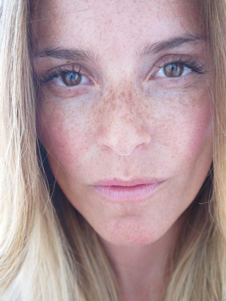 my freckleface