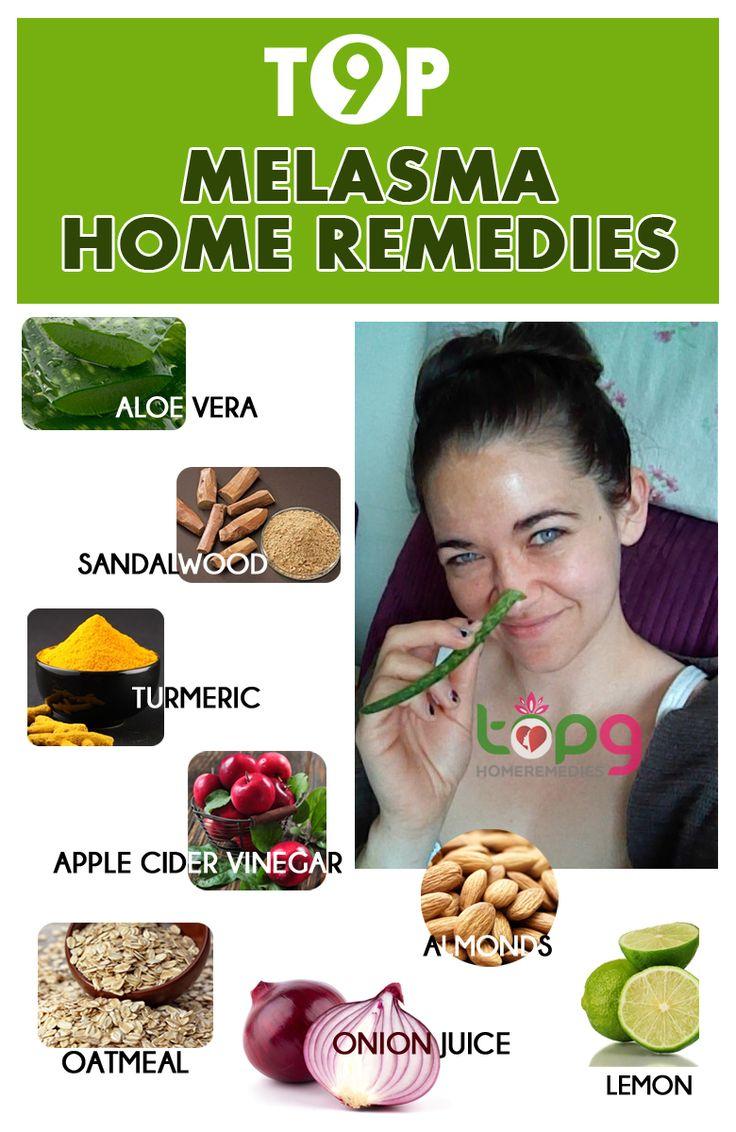 8 best home remedies for pregnancy mask melasma images on pinterest beauty hacks beauty. Black Bedroom Furniture Sets. Home Design Ideas