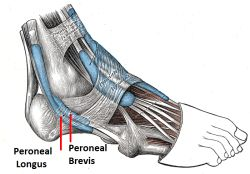 Peroneal Tendonitis: Causes, Symptoms & Treatment