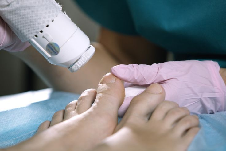 Our @Cutera laser therapy can get rid of those yellow brittle fungal toenails q