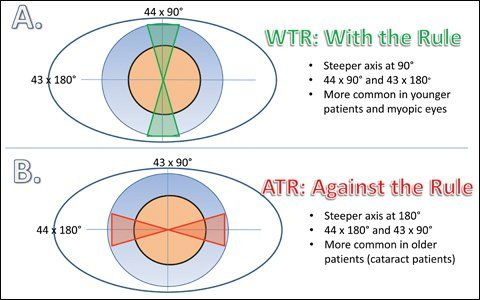 Astigmatism With The Rule Astigmatism Against The Rule Astigmatism Eye Optometry Eye Health