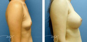 Dr. J performs rapid recovery breast augmentation in Beverly Hills, and this technique is available to most patients. Call us at 310-993-3800 for a free consultation.
