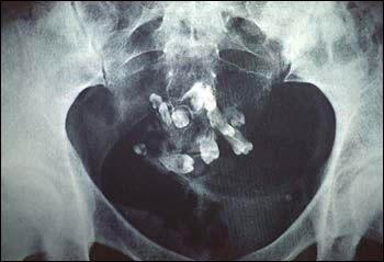 Kyste dermoïde utérin avec dents et cheveux