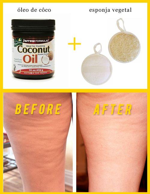 Massagem com óleo de côco e esponja vegetal elimina a celulite! #ficaadica