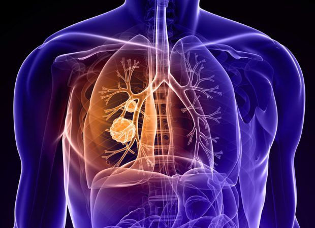 Το τσιγάρο πίσω από 12 τύπους καρκίνου ~ Ardan News