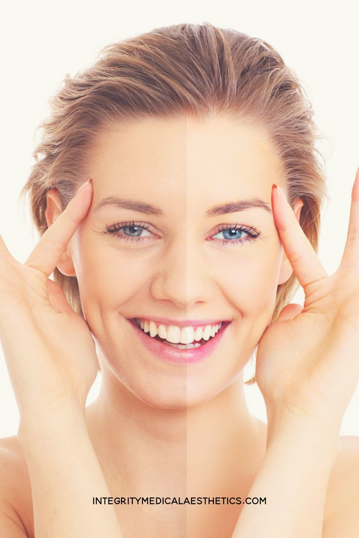 Who doesn't love the sun? After many years of sun exposure, the accumulative damage to your skin can cause dark spots, hyperpigmentation, fine lines and wrinkles. Over time the effects of sun exposure and aging will increase. How do you get rid of age spots and hyperpigmentation?