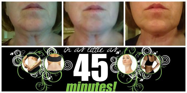 My results after 2 face wraps and 2 chin  wraps! http://gonenutsoverwraps.myitworks.com