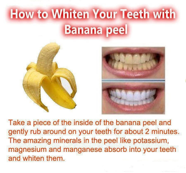 Whiten Your Teeth With A Banana Peel