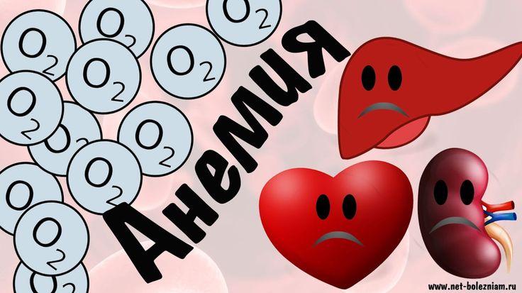 Что такие анемия? #анемия #малокровие #железодефицитнаяанемия #железо #В12 #фолиеваякислота #гемоглобин #эритроциты #кровь #netbolezniamru #здоровье #медицина