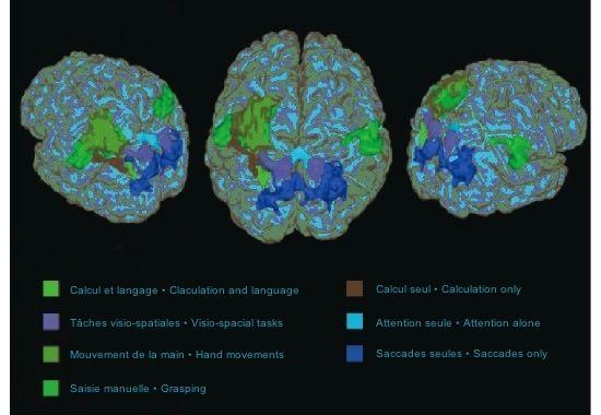 Différentes zones du cerveau