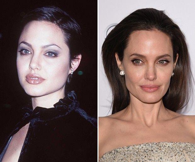 Cirurgia para diminuir as bochechas: conheça a bichectomia, mania entre as famosas - Vogue | Beleza