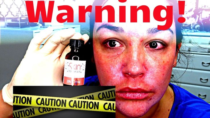 WARNING: At Home TCA Chemical Peel Live. Fade Dark Spots, Wrinkles, Acne...