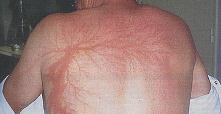 Lichtenberge Lightning Scars.