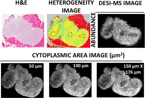 #AChem: Variations in the Abundance of Lipid Biomarker Ions in Mass Spectrometry Images Correlate to Tissue Density #MassSpec