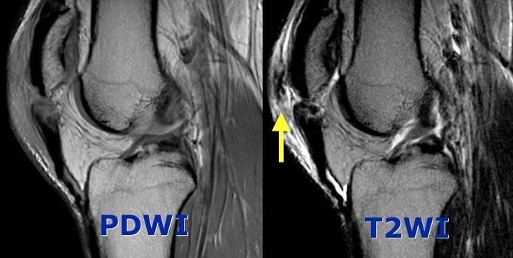 Complete Patellar tendon tear