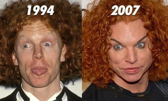 Shouldn't have done it Carrot Top.  What will you look like when you're 60 years old?: Top Plastic, Carrot Top, Plastic Surgeries, Celebrity Photos, Carrottop, Celebrity Plastic Surgery, Carrots, Wrong