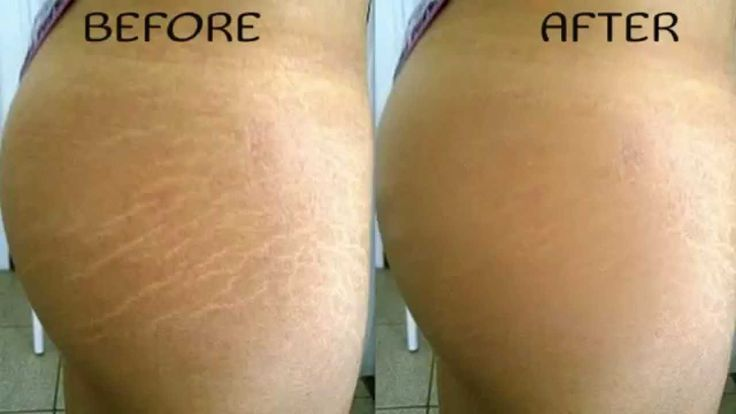 As a certified personal trainer, I get asked many questions on a daily basis. However, three of the main things I get asked are: How can I get rid of stretch marks? How can I tighten up loose or saggy