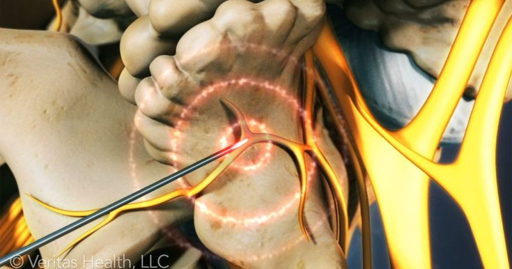 Radiofrequency ablation is a minimally invasive procedure that is usually performed with local anesthetic and mild sedation more injection information as with many spinal injections radiofrequency neurotomy is best performed...