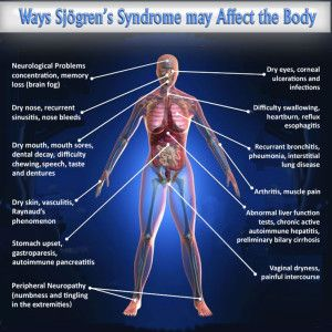 a comparison of the symptoms of fibromyalgia and chronic fatigue syndrome Can sleep apnea cause fibromyalgia (fm)- and chronic fatigue syndrome (cfs)-like symptoms prohealthcom • august 11, 2000 a a a print  fibromyalgia • me & cfs.