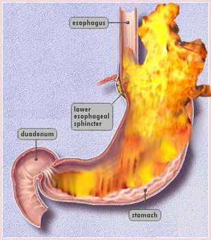 What Is Acid Reflux and Treatment For It?