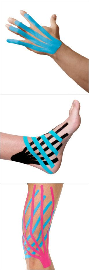 Kinesiology Taping for Edema and Lymphedema