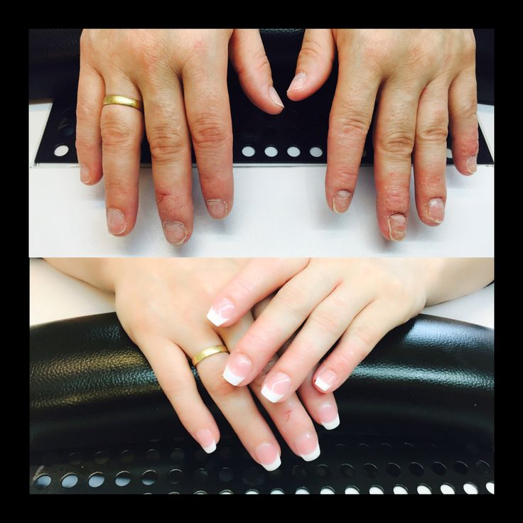 Nail treatments for fingers and nail beds that struggle with eczema and psoriasis. Lofoten Medi SPA