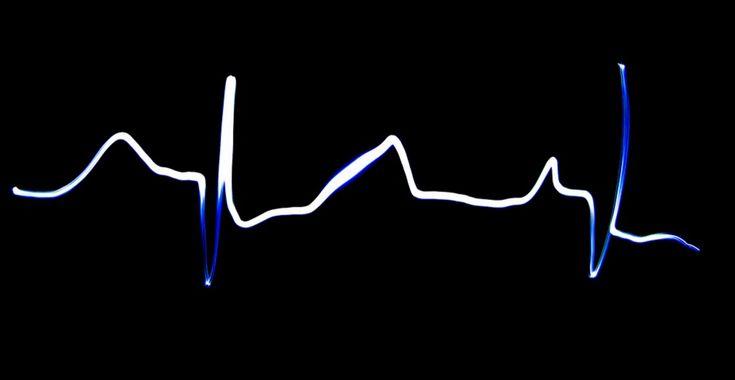 Чтобы сердечный ритм не мешал нам, в мозге против него есть специальная «глушилка». (Фото max_2001ar / www.flickr.com/photos/55865105@N04/15024342631.)