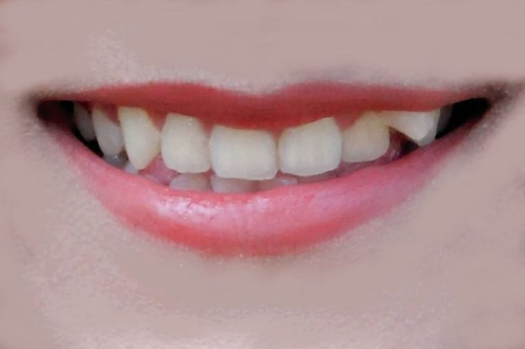 she Lips