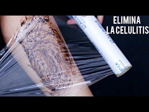 Cómo eliminar la celulitis de forma fácil y rápido.