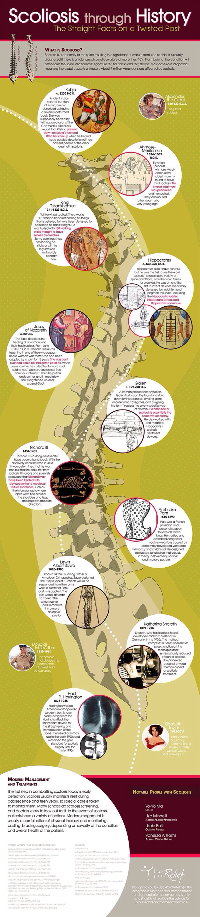 Scoliosis through history