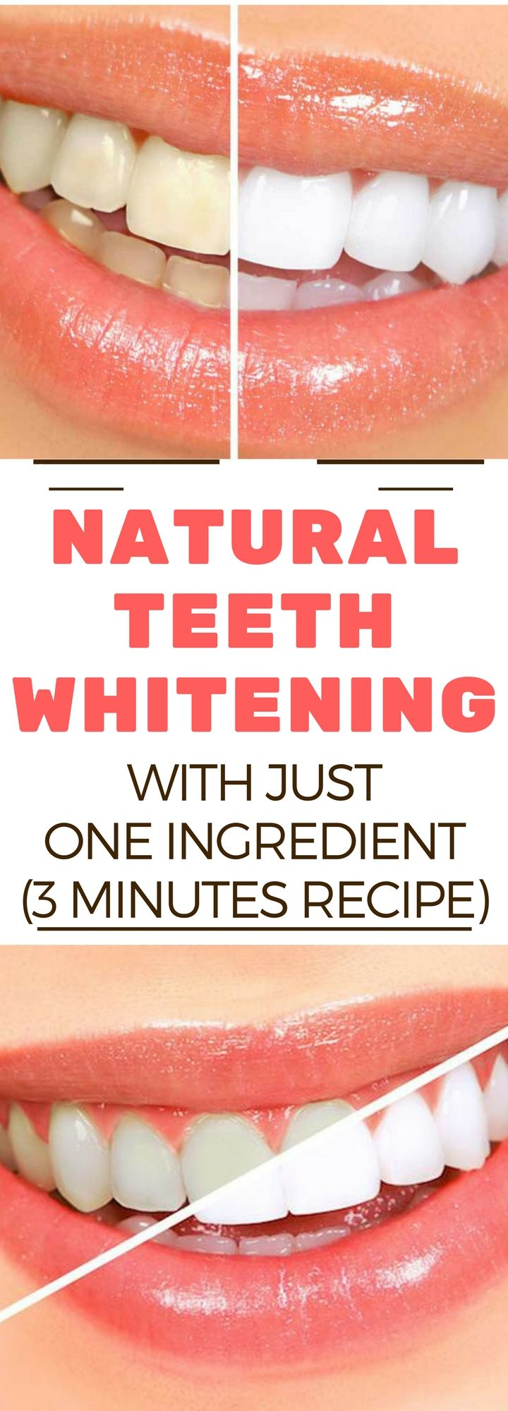 NATURAL TEETH WHITENING WITH JUST ONE INGREDIENT (3 MINUTES RECIPE!))..!!!! !!!