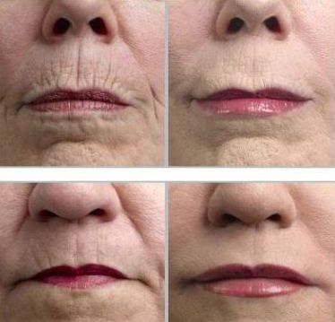 Face Flexing Gymnastics For The Face And Neck For A More Youthful Looking You