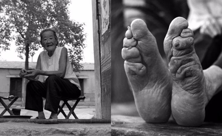 Le #donne dai Piedi di #loto. Una millenaria tradizione cinese bandita solo nel 1911, dove le donne fin da piccole si bendavano i piedi per non farli crescere. divenuto negli anni simbolo si uno #status #sociale.  http://www.thepostinternazionale.it/mondo/cina/foto-donne-cina-piedi-di-loto-fasciati
