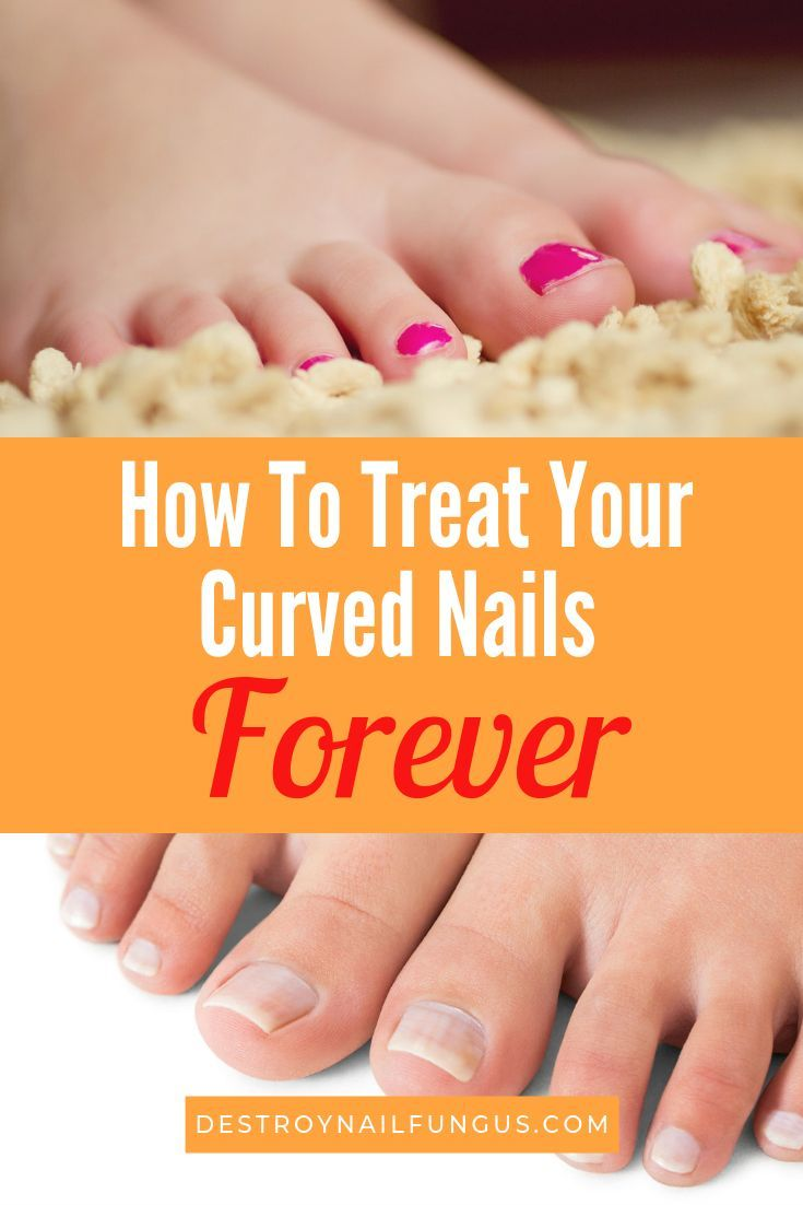 How To Fix Curved Toenails : curved, toenails, Curved, Toenail:, (Today!), Nails,, Problems