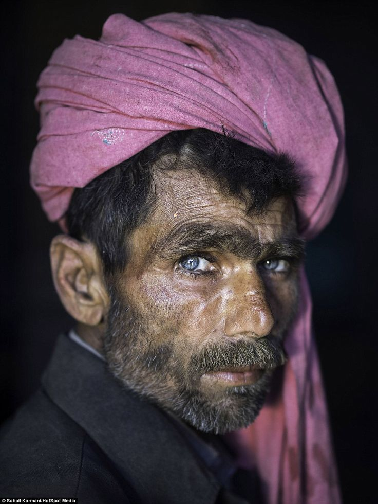 A heroin addict on the streets of Sahiwal wearing a bright pink turban, captured by photographer Sohail Karmani in Pakistan