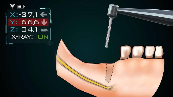 3D animáció készítés - SOTE fogászati animáció