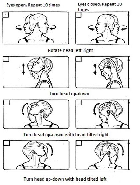 Vertigo Head Exercises - Bing images