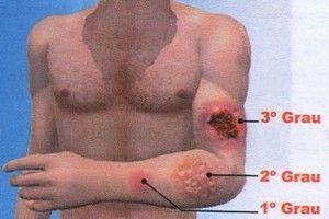 Aprenda três tratamentos naturais para queimaduras!