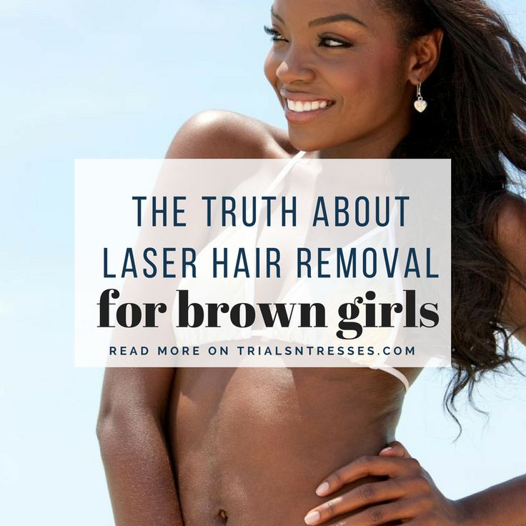 laser hair removal for brown girls